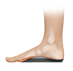 foot-supported-orthotic